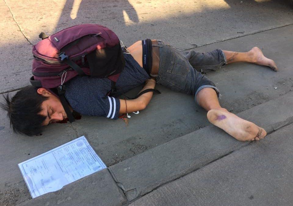 Joven vecino de Santiago Astata, Fue atropellado en Tijuana